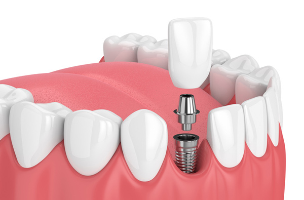 Rendering of jaw with dental implant and crown from Tim Perry, DDS